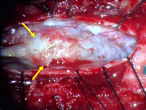 Recurrent intrathecal catheter-tip granuloma in a patient